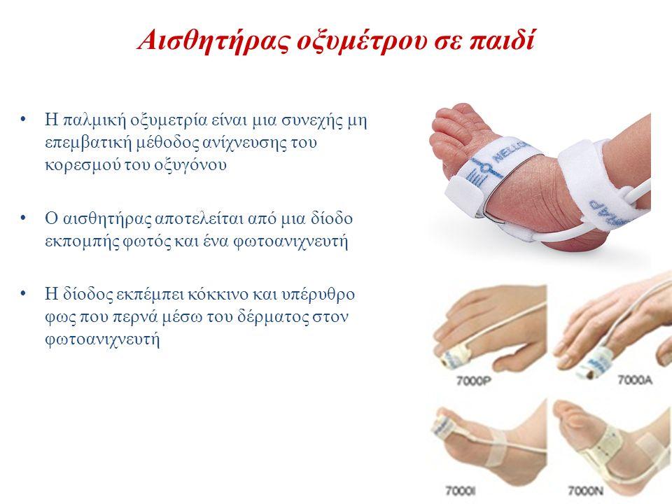 Αισθητήρας οξυμέτρου σε παιδί Η παλμική οξυμετρία είναι μια συνεχής μη επεμβατική μέθοδος ανίχνευσης του κορεσμού του οξυγόνου Ο αισθητήρας αποτελείτα