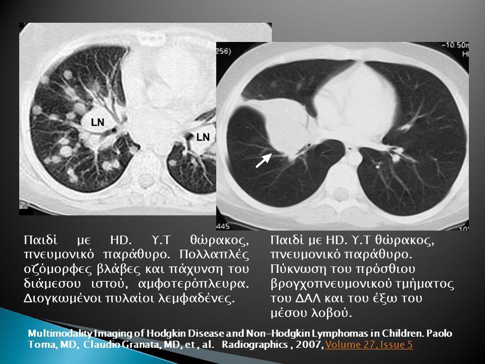 Παιδί με HD. Υ.Τ θώρακος, πνευμονικό παράθυρο. Πολλαπλές οζόμορφες βλάβες και πάχυνση του διάμεσου ιστού, αμφοτερόπλευρα. Διογκωμένοι πυλαίοι λεμφαδέν