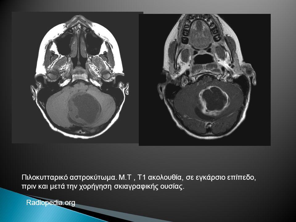 Πιλοκυτταρικό αστροκύτωμα. Μ.Τ, Τ1 ακολουθία, σε εγκάρσιο επίπεδο, πριν και μετά την χορήγηση σκιαγραφικής ουσίας. Radiopedia.org