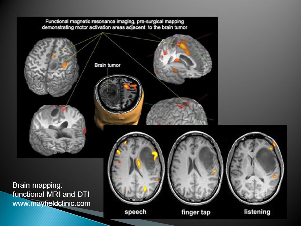 Brain mapping: functional MRI and DTI www.mayfieldclinic.com