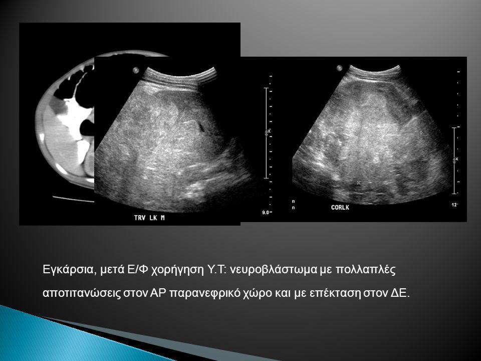 Εγκάρσια, μετά Ε/Φ χορήγηση Υ.Τ: νευροβλάστωμα με πολλαπλές αποτιτανώσεις στον ΑΡ παρανεφρικό χώρο και με επέκταση στον ΔΕ.