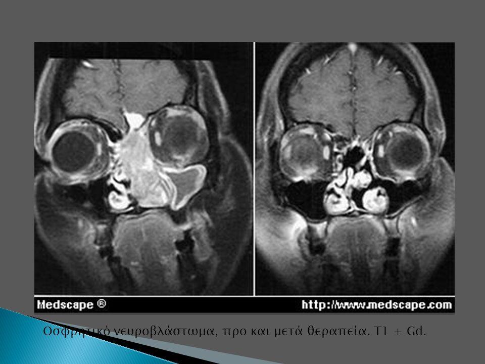 Oσφρητικό νευροβλάστωμα, προ και μετά θεραπεία. Τ1 + Gd.