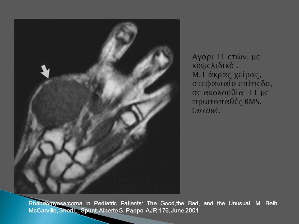 Αγόρι 11 ετών, με κυψελιδικό. Μ.Τ άκρας χείρας, στεφανιαίο επίπεδο, σε ακολουθία Τ1 με πρωτοπαθές RMS. (arrow). Rhabdomyosarcoma in Pediatric Patients