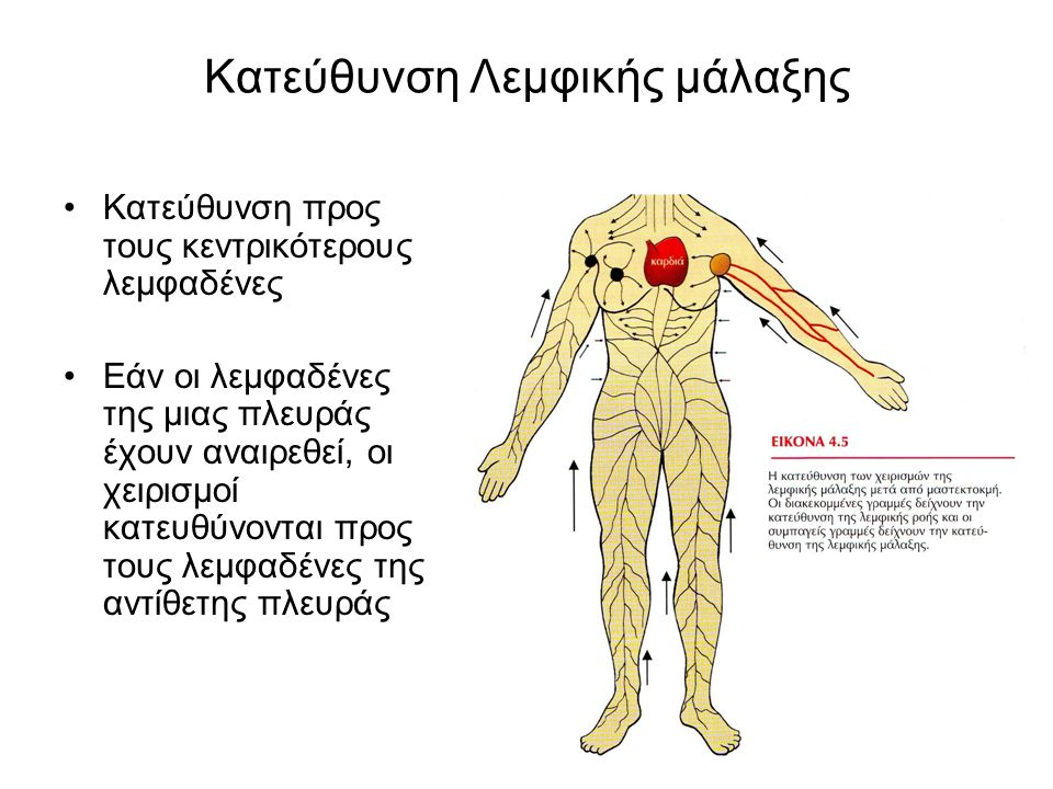 Κατεύθυνση Λεμφικής μάλαξης Κατεύθυνση προς τους κεντρικότερους λεμφαδένες Εάν οι λεμφαδένες της μιας πλευράς έχουν αναιρεθεί, οι χειρισμοί κατευθύνον