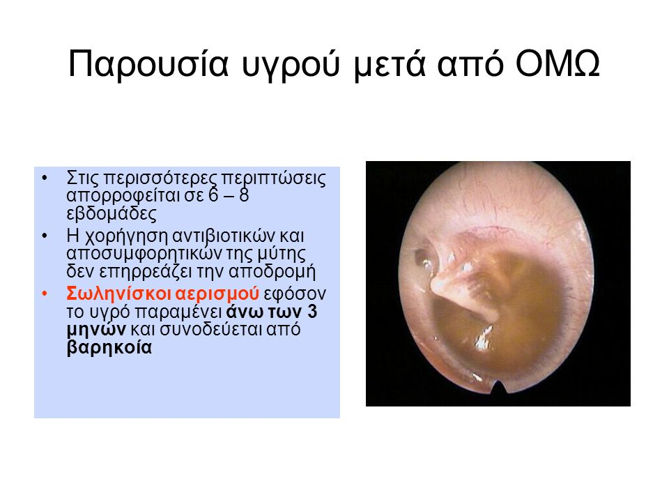 Παρουσία υγρού μετά από ΟΜΩ Στις περισσότερες περιπτώσεις απορροφείται σε 6 – 8 εβδομάδες Η χορήγηση αντιβιοτικών και αποσυμφορητικών της μύτης δεν επ