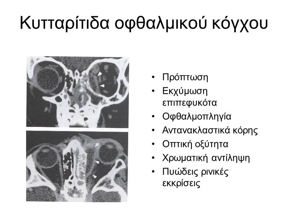 Πρόπτωση Εκχύμωση επιπεφυκότα Οφθαλμοπληγία Αντανακλαστικά κόρης Οπτική οξύτητα Χρωματική αντίληψη Πυώδεις ρινικές εκκρίσεις Κυτταρίτιδα οφθαλμικού κό