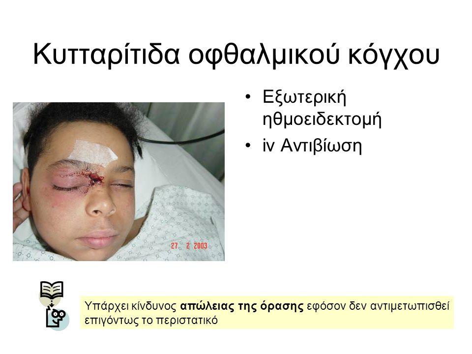 Εξωτερική ηθμοειδεκτομή iv Αντιβίωση Υπάρχει κίνδυνος απώλειας της όρασης εφόσον δεν αντιμετωπισθεί επιγόντως το περιστατικό Κυτταρίτιδα οφθαλμικού κό