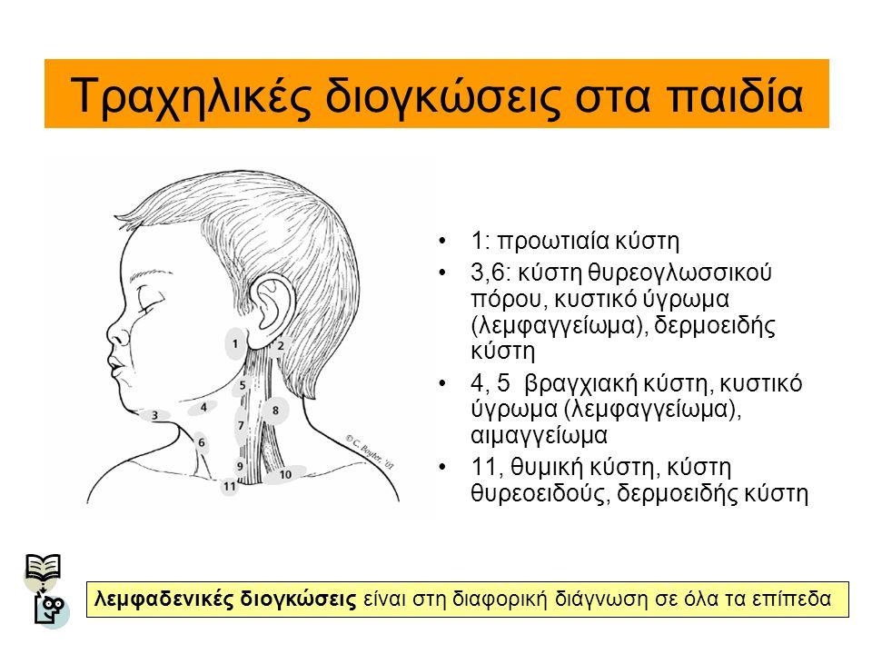 Τραχηλικές διογκώσεις στα παιδία 1: προωτιαία κύστη 3,6: κύστη θυρεογλωσσικού πόρου, κυστικό ύγρωμα (λεμφαγγείωμα), δερμοειδής κύστη 4, 5 βραγχιακή κύ