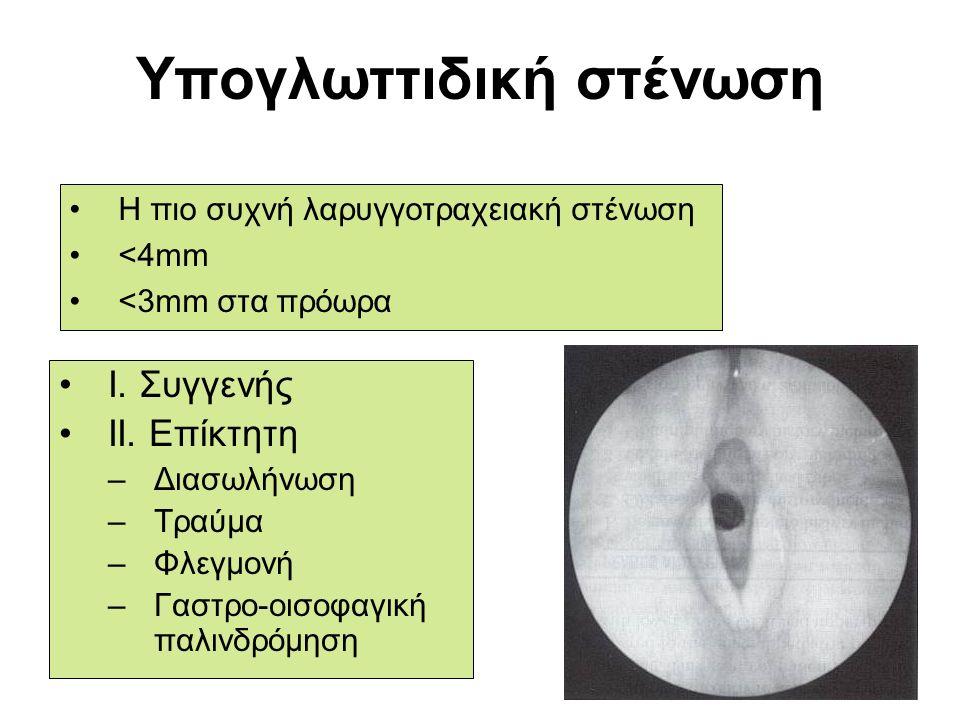 Υπογλωττιδική στένωση I. Συγγενής II. Επίκτητη –Διασωλήνωση –Τραύμα –Φλεγμονή –Γαστρο-οισοφαγική παλινδρόμηση Η πιο συχνή λαρυγγοτραχειακή στένωση <4m