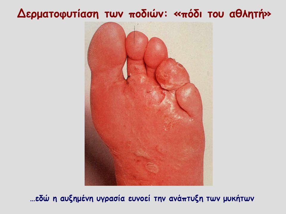 Δερματοφυτίαση των ποδιών: «πόδι του αθλητή» …εδώ η αυξημένη υγρασία ευνοεί την ανάπτυξη των μυκήτων