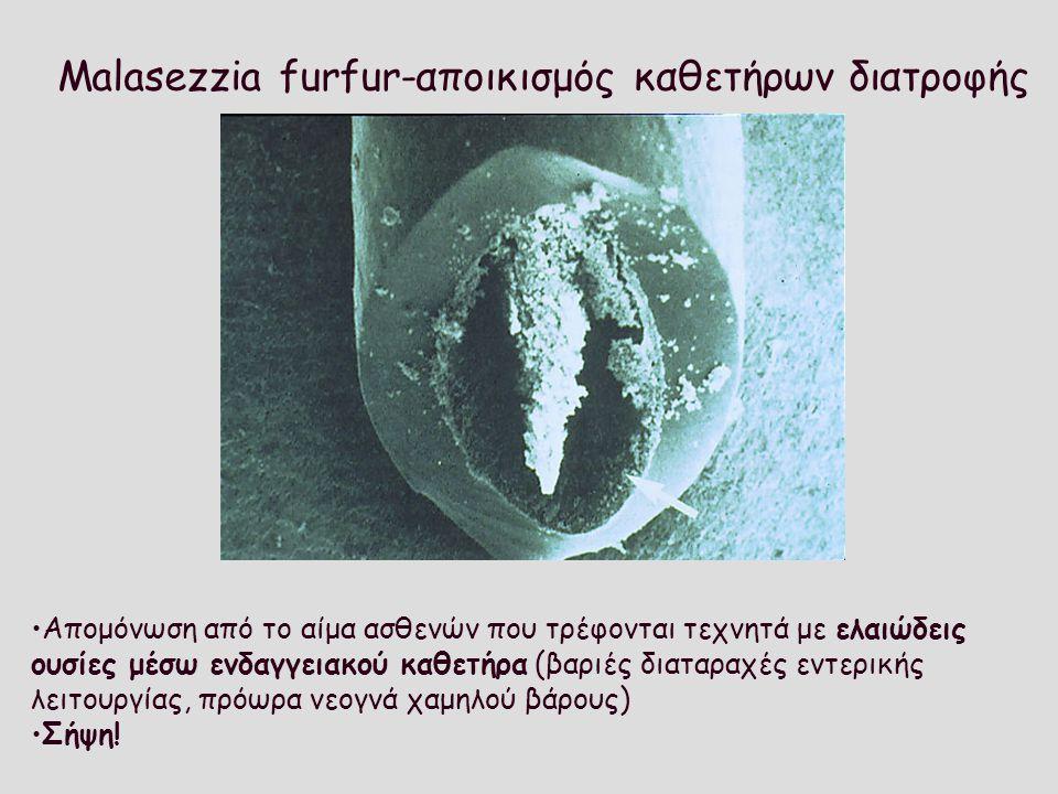 Malasezzia furfur-αποικισμός καθετήρων διατροφής Απομόνωση από το αίμα ασθενών που τρέφονται τεχνητά με ελαιώδεις ουσίες μέσω ενδαγγειακού καθετήρα (β