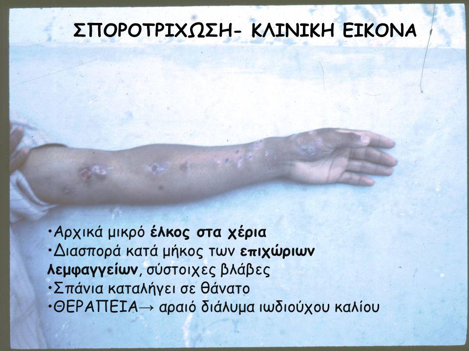 ΣΠΟΡΟΤΡΙΧΩΣΗ- ΚΛΙΝΙΚΗ ΕΙΚΟΝΑ Αρχικά μικρό έλκος στα χέρια Διασπορά κατά μήκος των επιχώριων λεμφαγγείων, σύστοιχες βλάβες Σπάνια καταλήγει σε θάνατο Θ