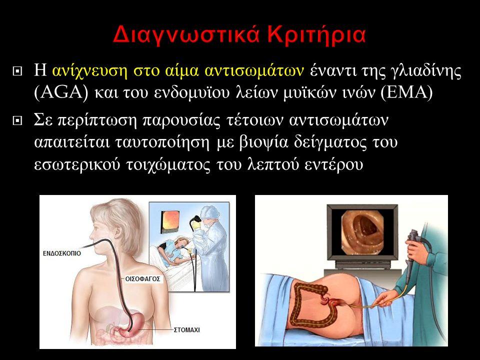 Η ανίχνευση στο αίμα αντισωμάτων έναντι της γλιαδίνης (AGA) και του ενδομυϊου λείων μυϊκών ινών ( ΕΜΑ )  Σε περίπτωση παρουσίας τέτοιων αντισωμάτων