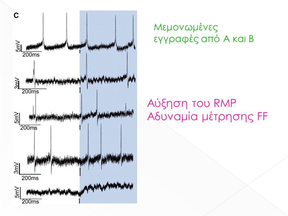 Μεμονωμένες εγγραφές από Α και Β Αύξηση του RMP Αδυναμία μέτρησης FF