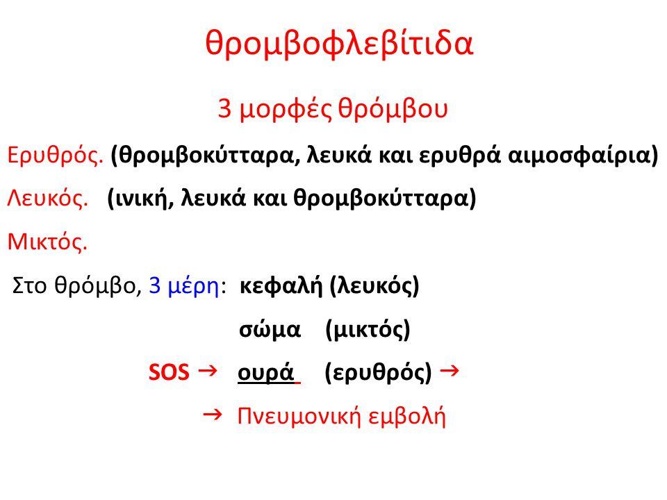 θρομβοφλεβίτιδα 3 μορφές θρόμβου Ερυθρός. (θρομβοκύτταρα, λευκά και ερυθρά αιμοσφαίρια) Λευκός. (ινική, λευκά και θρομβοκύτταρα) Μικτός. Στο θρόμβο, 3