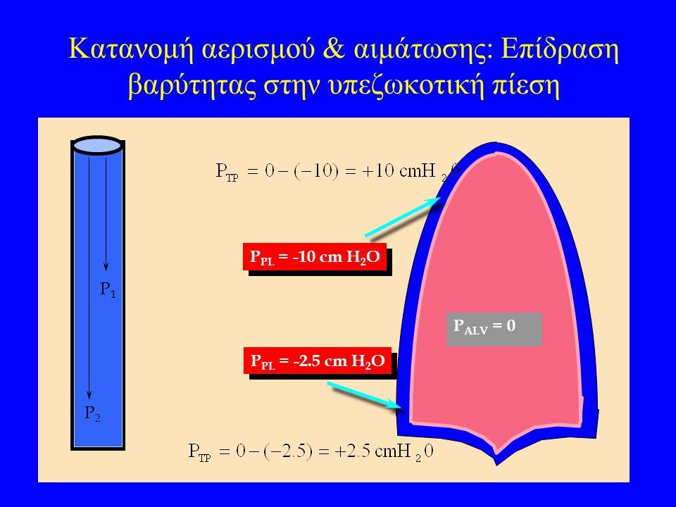 Κατανομή αερισμού & αιμάτωσης: Επίδραση βαρύτητας στην υπεζωκοτική πίεση P2P2 P1P1 P ALV = 0 P PL = -2.5 cm H 2 O P PL = -10 cm H 2 O