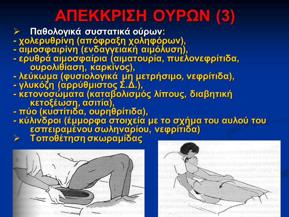 ΑΠΕΚΚΡΙΣΗ ΟΥΡΩΝ (3)  Παθολογικά συστατικά ούρων: - χολερυθρίνη (απόφραξη χοληφόρων), - αιμοσφαιρίνη (ενδαγγειακή αιμόλυση), - ερυθρά αιμοσφαίρια (αιματουρία, πυελονεφρίτιδα, ουρολιθίαση, καρκίνος), - λεύκωμα (φυσιολογικά μη μετρήσιμο, νεφρίτιδα), - γλυκόζη (αρρύθμιστος Σ.Δ.), - κετονοσώματα (καταβολισμός λίπους, διαβητική κετοξέωση, ασιτία), - πύο (κυστίτιδα, ουρηθρίτιδα), - κύλινδροι (έμμορφα στοιχεία με το σχήμα του αυλού του εσπειραμένου σωληναρίου, νεφρίτιδα)  Τοποθέτηση σκωραμίδας