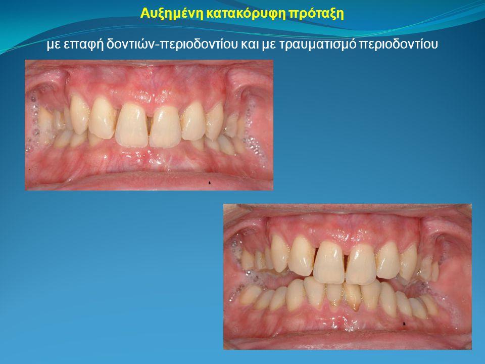 με επαφή δοντιών-περιοδοντίου και με τραυματισμό περιοδοντίου Αυξημένη κατακόρυφη πρόταξη