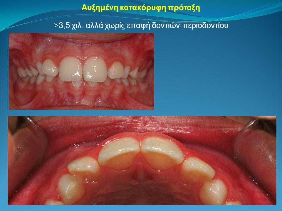 >3,5 χιλ. αλλά χωρίς επαφή δοντιών-περιοδοντίου Αυξημένη κατακόρυφη πρόταξη