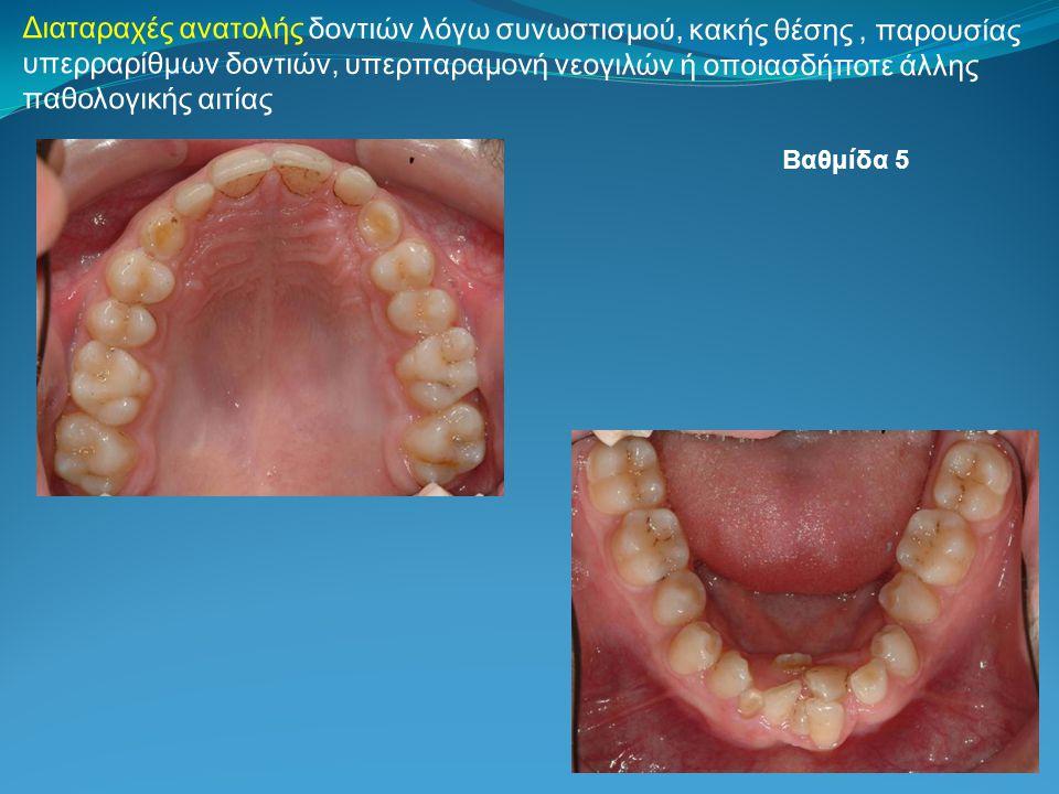 Διαταραχές ανατολής δοντιών λόγω συνωστισμού, κακής θέσης, παρουσίας υπερραρίθμων δοντιών, υπερπαραμονή νεογιλών ή οποιασδήποτε άλλης παθολογικής αιτίας Βαθμίδα 5