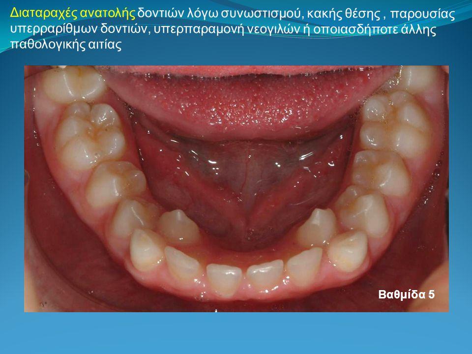 Διαταραχές ανατολής δοντιών λόγω συνωστισμού, κακής θέσης, παρουσίας υπερραρίθμων δοντιών, υπερπαραμονή νεογιλών ή οποιασδήποτε άλλης παθολογικής αιτί