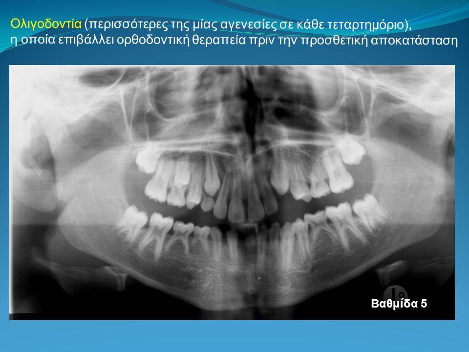 Ολιγοδοντία (περισσότερες της μίας αγενεσίες σε κάθε τεταρτημόριο), η οποία επιβάλλει ορθοδοντική θεραπεία πριν την προσθετική αποκατάσταση Βαθμίδα 5
