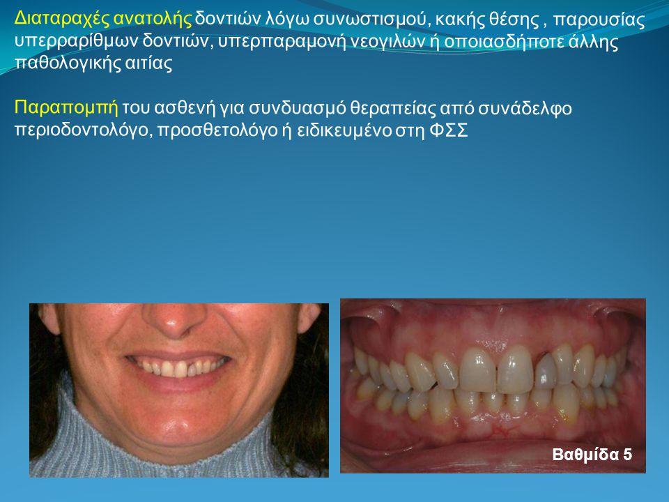 Διαταραχές ανατολής δοντιών λόγω συνωστισμού, κακής θέσης, παρουσίας υπερραρίθμων δοντιών, υπερπαραμονή νεογιλών ή οποιασδήποτε άλλης παθολογικής αιτίας Παραπομπή του ασθενή για συνδυασμό θεραπείας από συνάδελφο περιοδοντολόγο, προσθετολόγο ή ειδικευμένο στη ΦΣΣ Βαθμίδα 5