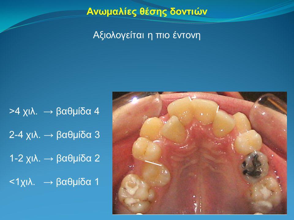 Ανωμαλίες θέσης δοντιών Αξιολογείται η πιο έντονη >4 χιλ. → βαθμίδα 4 2-4 χιλ. → βαθμίδα 3 1-2 χιλ. → βαθμίδα 2 <1χιλ. → βαθμίδα 1