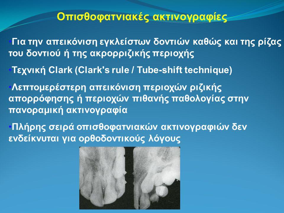 Οπισθοφατνιακές ακτινογραφίες Για την απεικόνιση εγκλείστων δοντιών καθώς και της ρίζας του δοντιού ή της ακρορριζικής περιοχής Τεχνική Clark (Clark s rule / Tube-shift technique) Λεπτομερέστερη απεικόνιση περιοχών ριζικής απορρόφησης ή περιοχών πιθανής παθολογίας στην πανοραμική ακτινογραφία Πλήρης σειρά οπισθοφατνιακών ακτινογραφιών δεν ενδείκνυται για ορθοδοντικούς λόγους