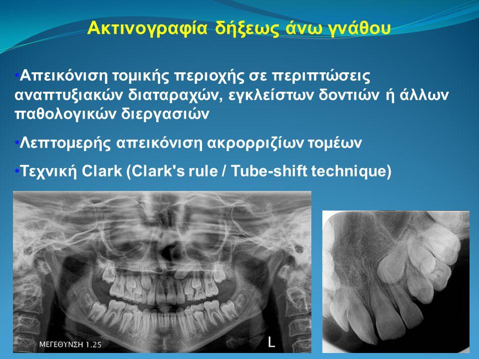 Ακτινογραφία δήξεως άνω γνάθου Απεικόνιση τομικής περιοχής σε περιπτώσεις αναπτυξιακών διαταραχών, εγκλείστων δοντιών ή άλλων παθολογικών διεργασιών Λεπτομερής απεικόνιση ακρορριζίων τομέων Τεχνική Clark (Clark s rule / Tube-shift technique)