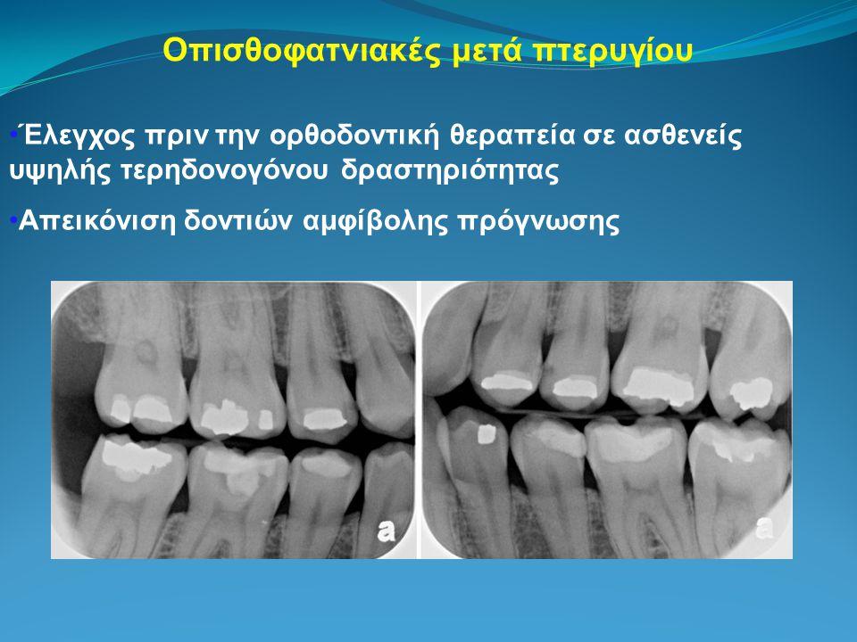 Οπισθοφατνιακές μετά πτερυγίου Έλεγχος πριν την ορθοδοντική θεραπεία σε ασθενείς υψηλής τερηδονογόνου δραστηριότητας Απεικόνιση δοντιών αμφίβολης πρόγνωσης