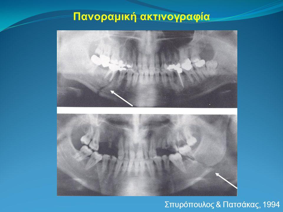 Πανοραμική ακτινογραφία Σπυρόπουλος & Πατσάκας, 1994