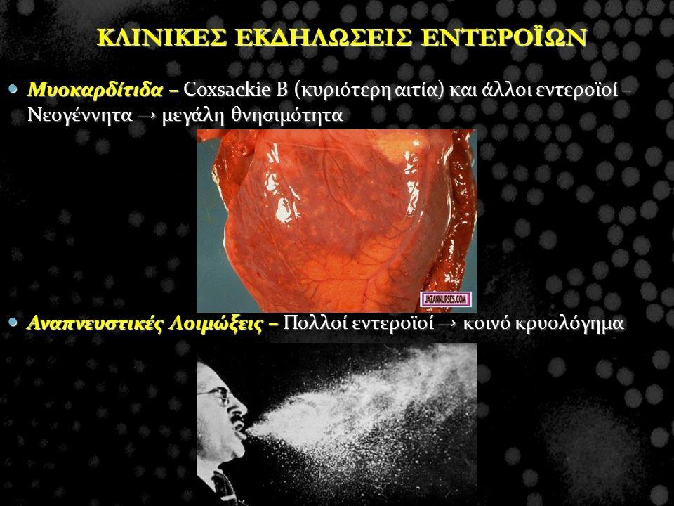 Mυοκαρδίτιδα – Coxsackie Β (κυριότερη αιτία) και άλλοι εντεροϊοί – Νεογέννητα → μεγάλη θνησιμότητα Mυοκαρδίτιδα – Coxsackie Β (κυριότερη αιτία) και άλ