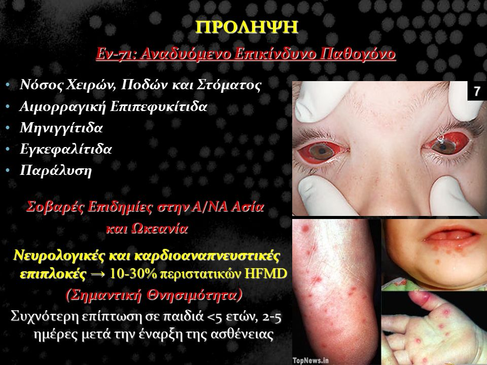 ΠΡΟΛΗΨΗ Ev-71: Αναδυόμενο Επικίνδυνο Παθογόνο Νόσος Χειρών, Ποδών και Στόματος Νόσος Χειρών, Ποδών και Στόματος Αιμορραγική Επιπεφυκίτιδα Αιμορραγική