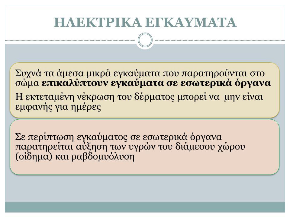ΗΛΕΚΤΡΙΚΑ ΕΓΚΑΥΜΑΤΑ