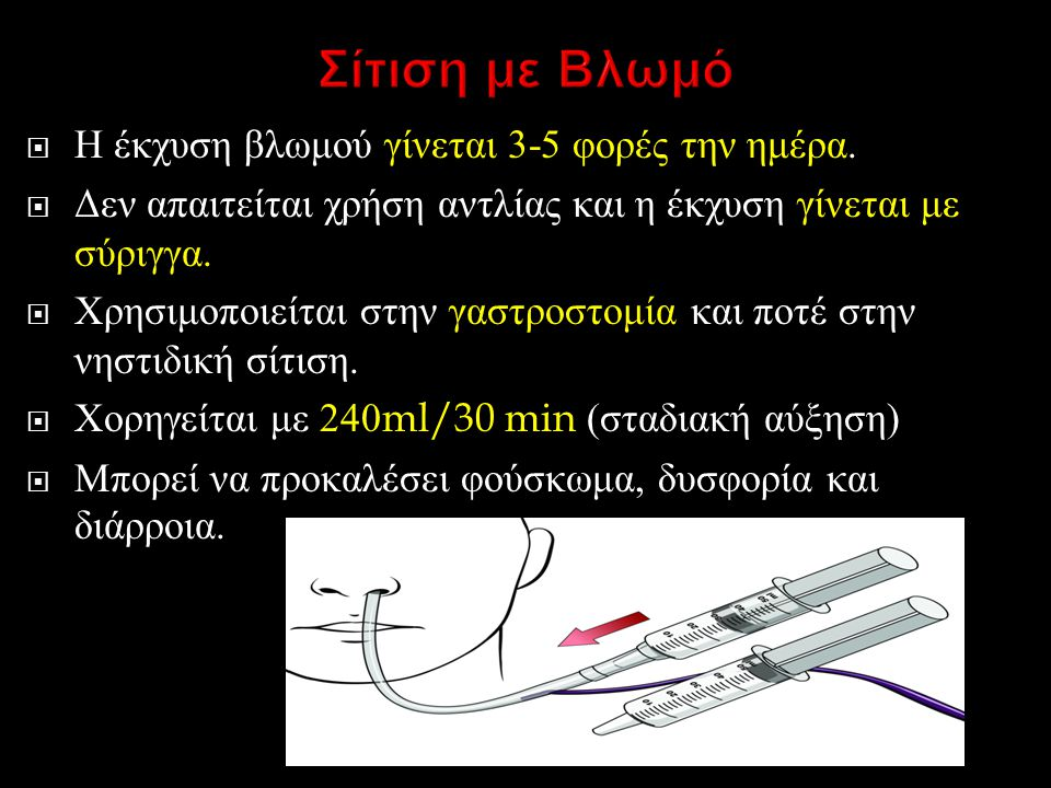  Η έκχυση βλωμού γίνεται 3-5 φορές την ημέρα.  Δεν απαιτείται χρήση αντλίας και η έκχυση γίνεται με σύριγγα.  Χρησιμοποιείται στην γαστροστομία και