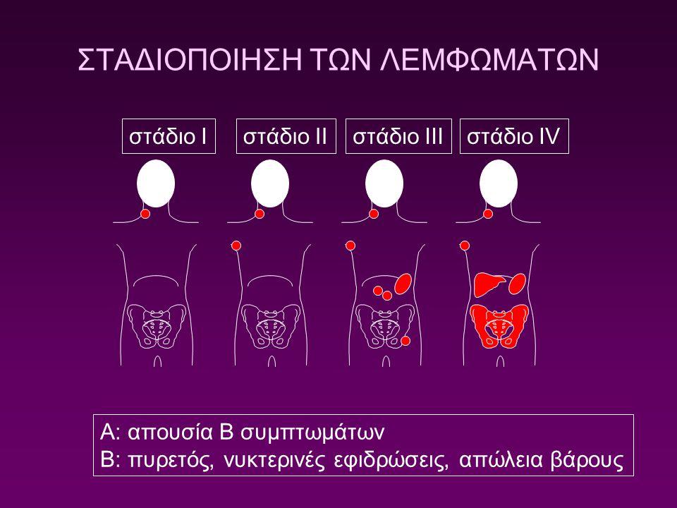 στάδιο Iστάδιο IIστάδιο IIIστάδιο IV ΣΤΑΔΙΟΠΟΙΗΣΗ ΤΩΝ ΛΕΜΦΩΜΑΤΩΝ A: απουσία B συμπτωμάτων B: πυρετός, νυκτερινές εφιδρώσεις, απώλεια βάρους