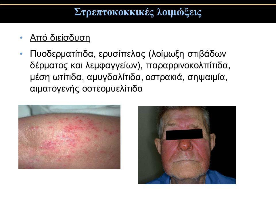 Στρεπτοκοκκικές λοιμώξεις Από διείσδυση Πυοδερματίτιδα, ερυσίπελας (λοίμωξη στιβάδων δέρματος και λεμφαγγείων), παραρρινοκολπίτιδα, μέση ωτίτιδα, αμυγ