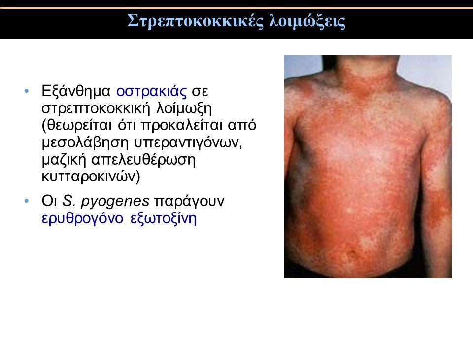 Στρεπτοκοκκικές λοιμώξεις Εξάνθημα οστρακιάς σε στρεπτοκοκκική λοίμωξη (θεωρείται ότι προκαλείται από μεσολάβηση υπεραντιγόνων, μαζική απελευθέρωση κυ