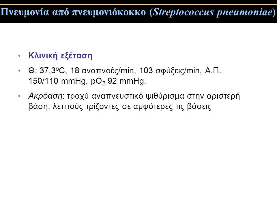 Πνευμονία από πνευμονιόκοκκο (Streptococcus pneumoniae) Κλινική εξέταση Θ: 37,3 ο C, 18 αναπνοές/min, 103 σφύξεις/min, Α.Π. 150/110 mmHg, pO 2 92 mmHg