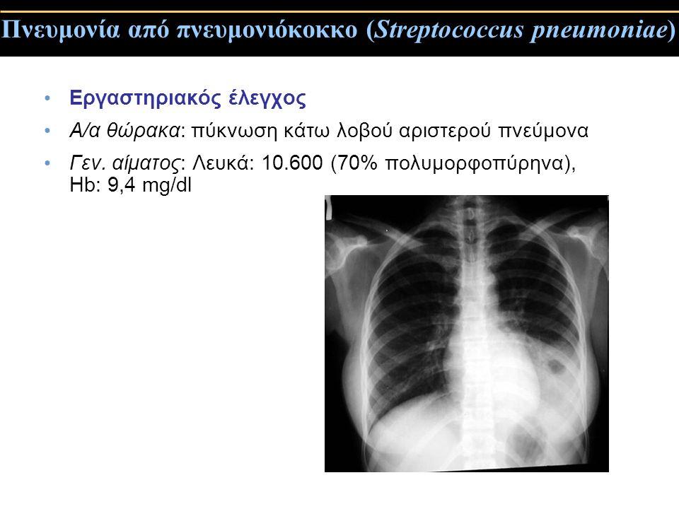 Πνευμονία από πνευμονιόκοκκο (Streptococcus pneumoniae) Εργαστηριακός έλεγχος Α/α θώρακα: πύκνωση κάτω λοβού αριστερού πνεύμονα Γεν. αίματος: Λευκά: 1
