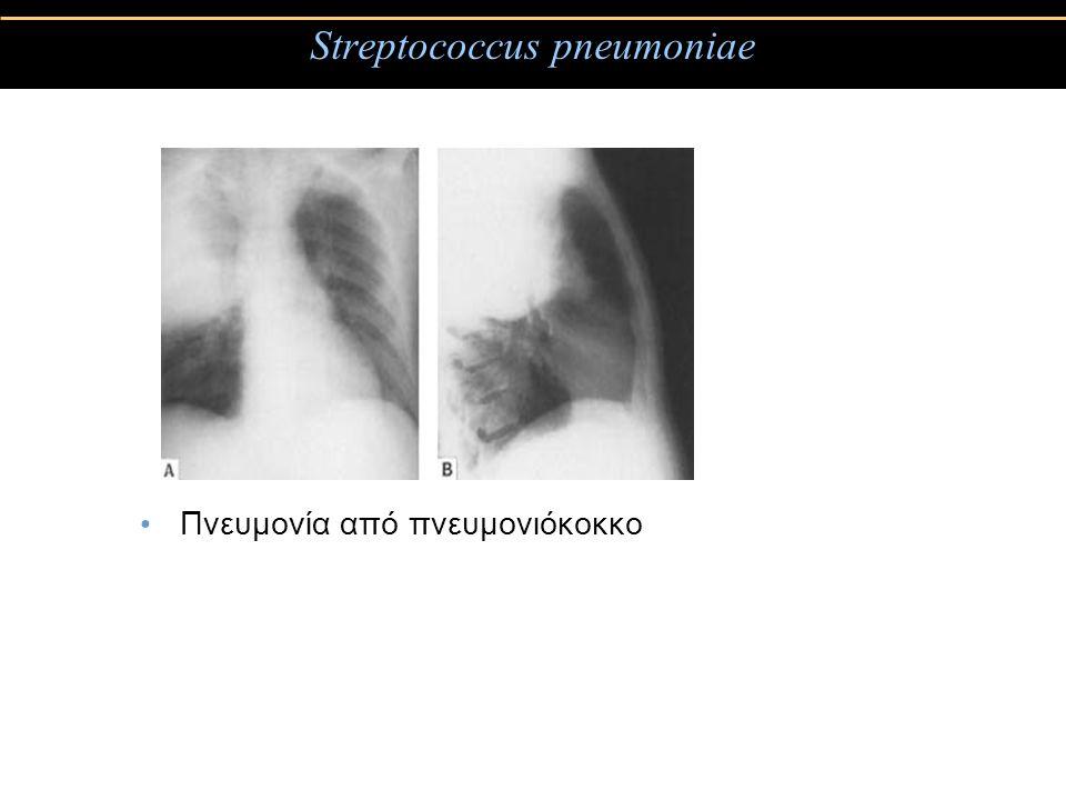 Streptococcus pneumoniae Πνευμονία από πνευμονιόκοκκο