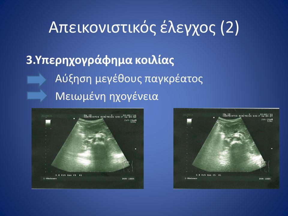Απεικονιστικός έλεγχος (2) 3.Υπερηχογράφημα κοιλίας Αύξηση μεγέθους παγκρέατος Μειωμένη ηχογένεια