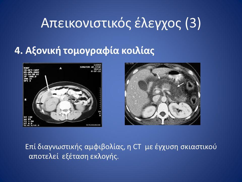 Απεικονιστικός έλεγχος (3) 4. Αξονική τομογραφία κοιλίας Επί διαγνωστικής αμφιβολίας, η CT με έγχυση σκιαστικού αποτελεί εξέταση εκλογής.