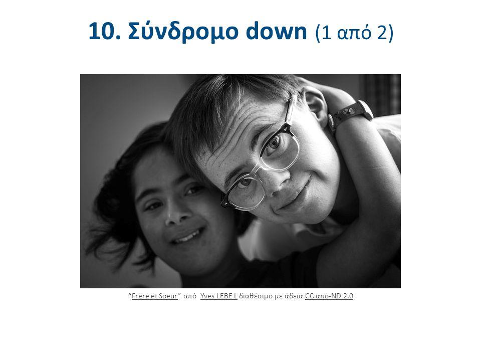 """10. Σύνδρομο down (1 από 2) """"Frère et Soeur"""" από Yves LEBE L διαθέσιμο με άδεια CC από-ND 2.0Frère et SoeurYves LEBE LCC από-ND 2.0"""