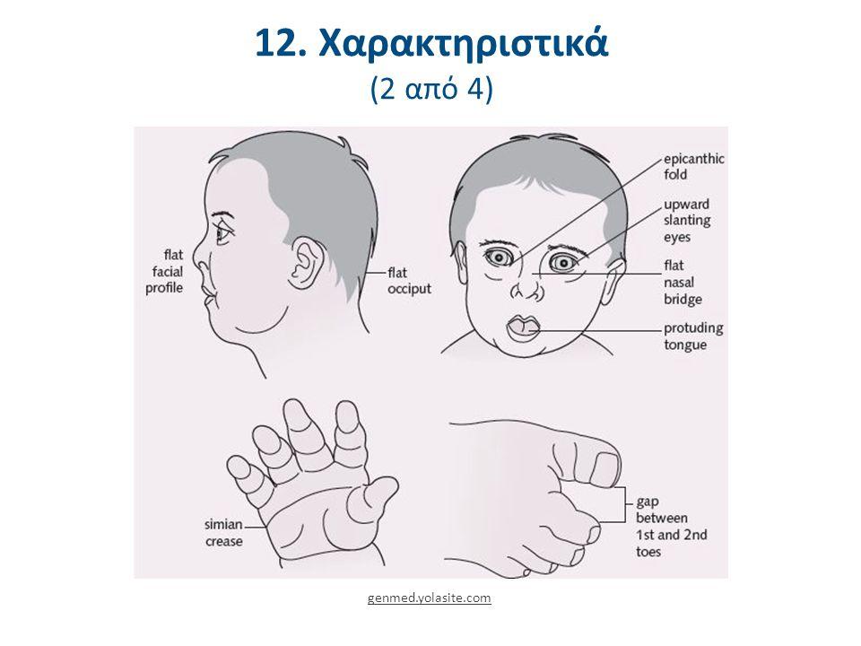 12. Χαρακτηριστικά (2 από 4) genmed.yolasite.com
