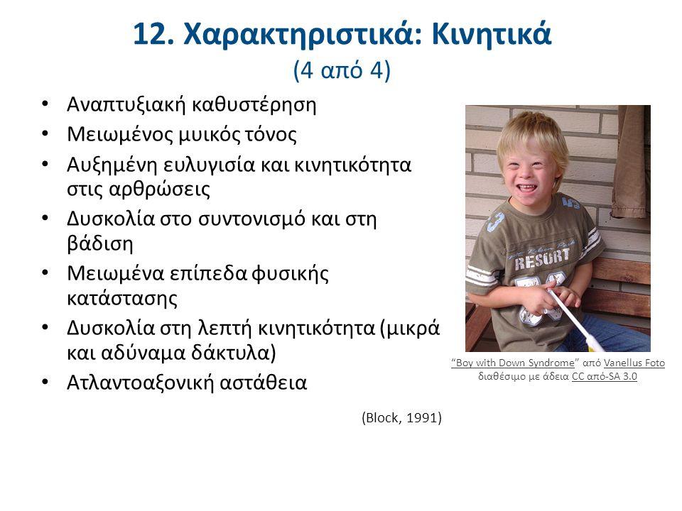 12. Χαρακτηριστικά: Κινητικά (4 από 4) Αναπτυξιακή καθυστέρηση Μειωμένος μυικός τόνος Αυξημένη ευλυγισία και κινητικότητα στις αρθρώσεις Δυσκολία στο