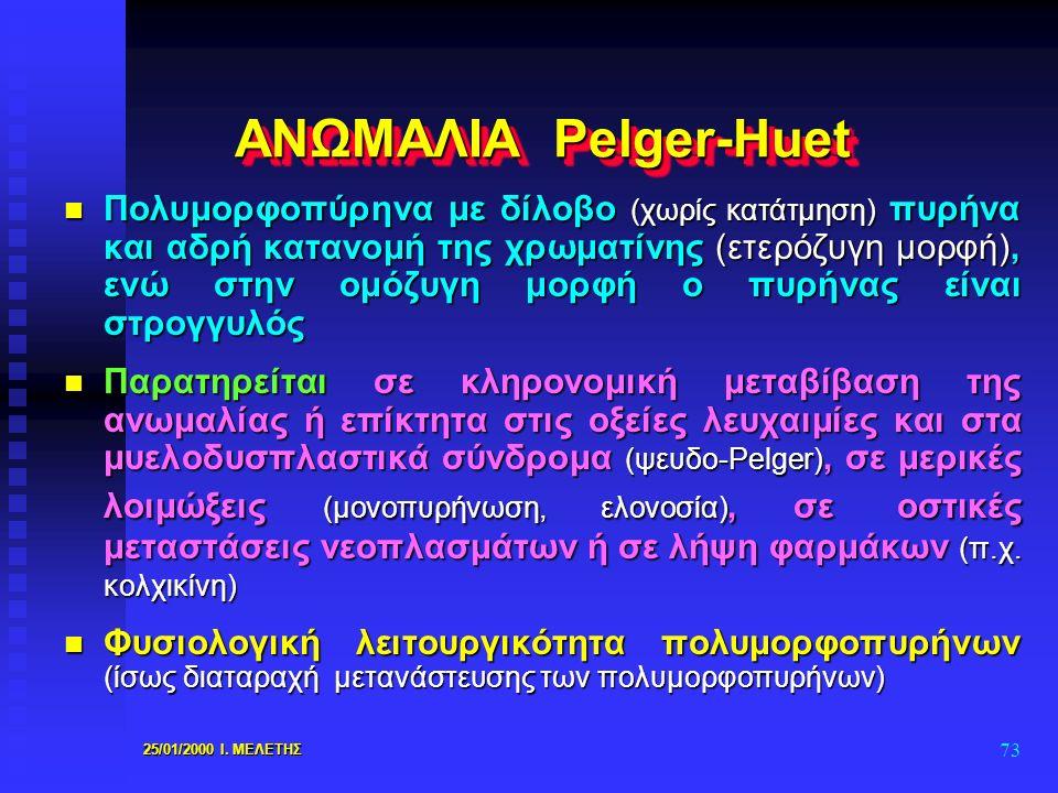 25/01/2000 Ι. ΜΕΛΕΤΗΣ 73 ΑΝΩΜΑΛΙΑ Pelger-Huet n Πολυμορφοπύρηνα με δίλοβο (χωρίς κατάτμηση) πυρήνα και αδρή κατανομή της χρωματίνης (ετερόζυγη μορφή),