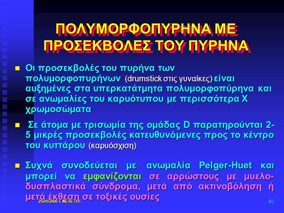 25/01/2000 Ι. ΜΕΛΕΤΗΣ 80 ΠΟΛΥΜΟΡΦΟΠΥΡΗΝΑ ΜΕ ΠΡΟΣΕΚΒΟΛΕΣ ΤΟΥ ΠΥΡΗΝΑ n Οι προσεκβολές του πυρήνα των πολυμορφοπυρήνων (drumstick στις γυναίκες) είναι αυ