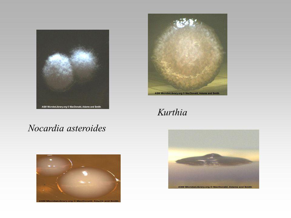 Nocardia asteroides Kurthia